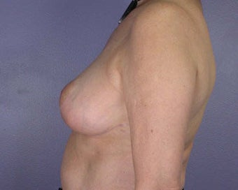 Breast Reduction after 285310