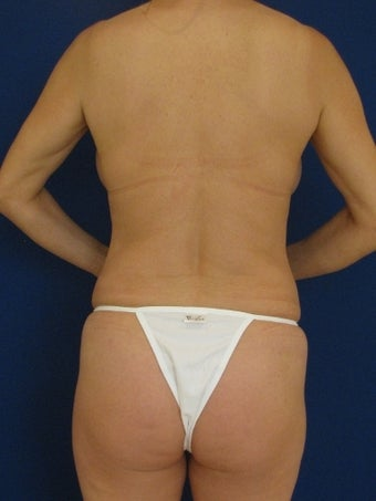 Vaser Hi-Def Liposuction of abdomen, chest, back and flanks before 422714