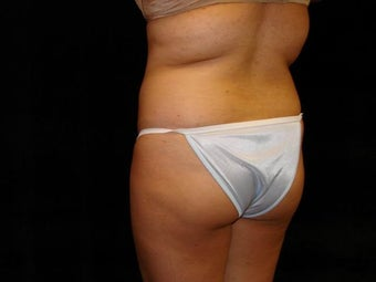 Buttocks Augmentation 517511