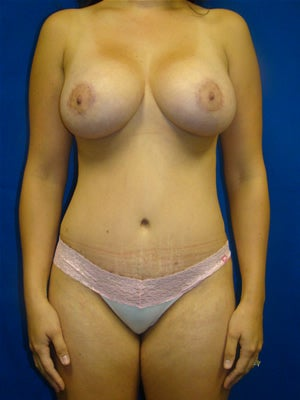 Breast Augmentation with Benelli Lift and Tummy Tuck after 133889