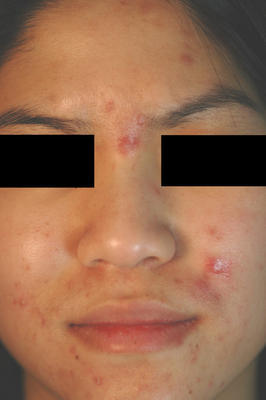Photodynamic Therapy for Acne before 86366