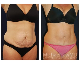Abdominoplasty - Tummy Tuck after 396176