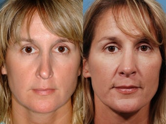 Revision rhinoplasty before 355710