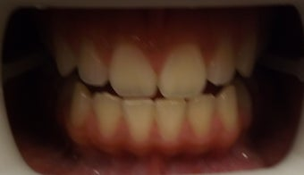 Zoom Teeth Whitening Before and After Photos before 616971