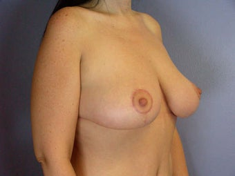 Breast Lift after 280135
