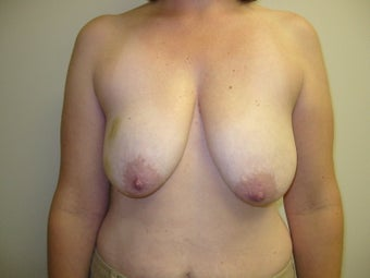 Breast Reconstruction before 273946