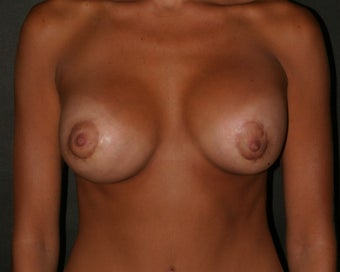 Breast Augmentation and Breast Lift 313251