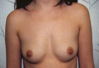 Breast Augmentation before 264318