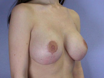 Breast Lift after 285363