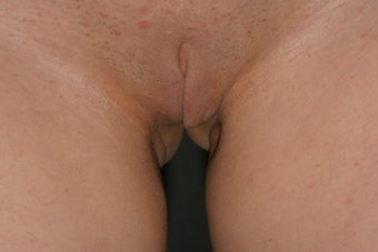 Labiaplasty after 333120