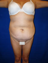 Tummy Tuck Surgery (abdominoplasty) before 129744