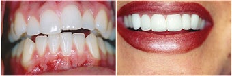 Veneers before 152664