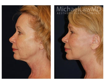 Cheek Augmentation 415266