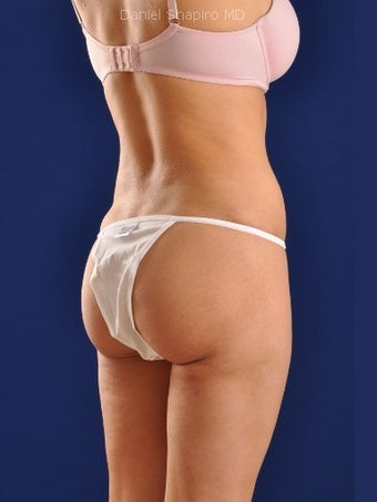 Vaser Hi-Def Liposuction of the back, flanks, medial and lateral thighs 422739