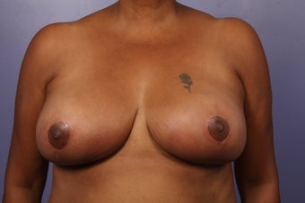 Breast Reduction after 526774