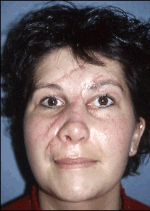 Facial Scar Improvement before 598645