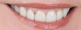 Orthodontics, all porcelain veneers, gum re-contouring after 503144