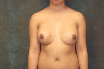 Women's Breast Augmentation: Redo before 553985