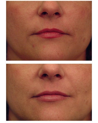 Juvederm before 301145