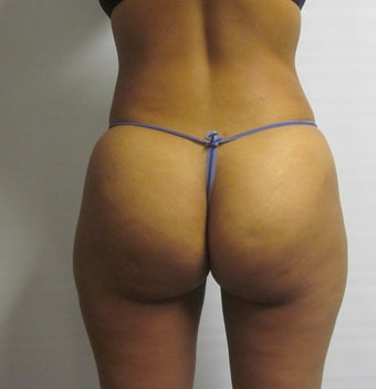 Gluteal Augmentation after 560806