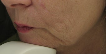 Fraxel Repair for Lower Face, Jowls, Wrinkles before 59505