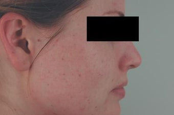 Laser Acne Scar Removal after 82979