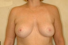 Full Mastopexy Augment to Correct Breast Asymmetry after 177525