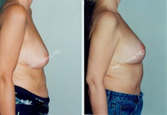 Mastopexy-Breast Lift before 243728