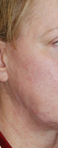 Before and After Multiple Excisions, Fat Grafting and Co2 Laser Active Fx Resurfacing Acne Scar Treatment after 562087