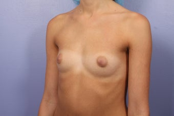 Breast Augmentation before 467317