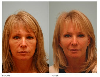 Fat Transfer/Fat Grafting/Facial Rejuvenation before 136374