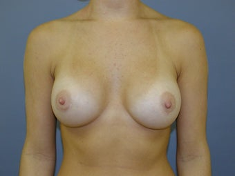 Breast Augmentation after 512169