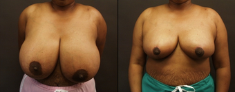 Breast Reduction  before 160546