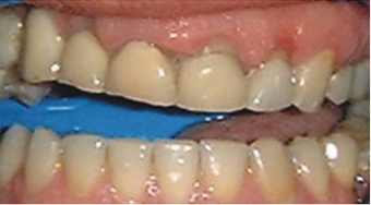 crown lengthening on temporary crowns before 607255
