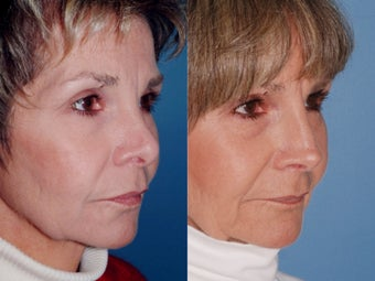 Revision rhinoplasty after 334293