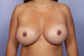 Breast Implant Revision after 622840