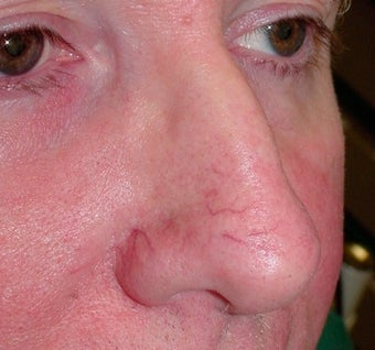 PDL for nose veins before 374576