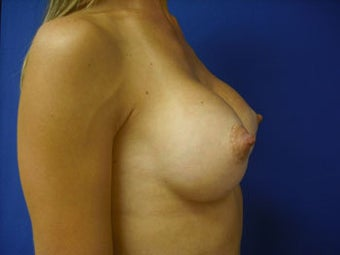 Breast Implants after 137926