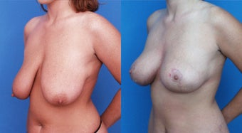Breast Lift before 122856