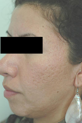 Erbium Laser Resurfacing for Acne Scars before 82973