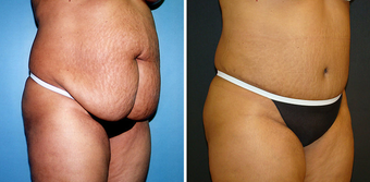 Tummy Tuck (Abdominoplasty) with Liposuction after 262729