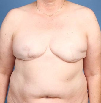 Breast Reconstruction before 539979