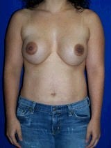 Revision Breast Surgery before 356588