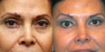 Non Surgical Liquid Eyelid Lift  before 549878