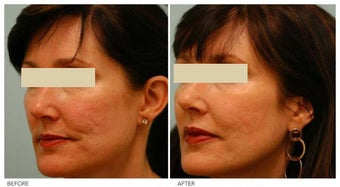 Acne Scarring Correction after 136802