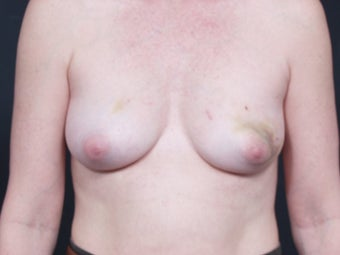 46 Year Old Female for Breast Reconstruction before 643179