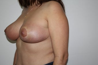 Breast reduction after 211372
