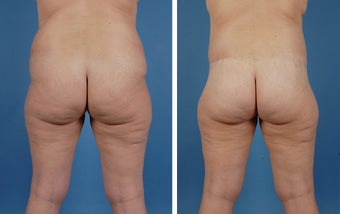 Lower Body Lift and Liposuction of Lateral Thighs after 303681