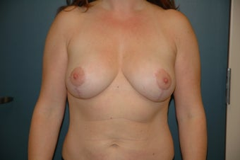 Breast reduction and lift after 152479