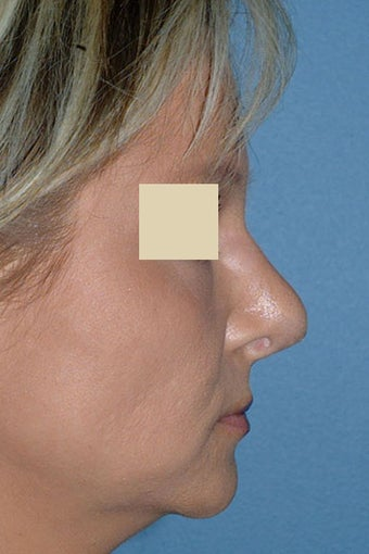 Revision Rhinoplasty before 88144